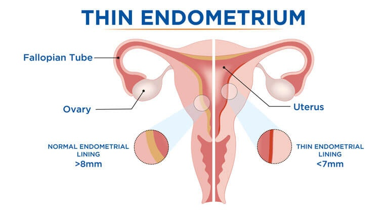 images/blog/Thin-Endometrium